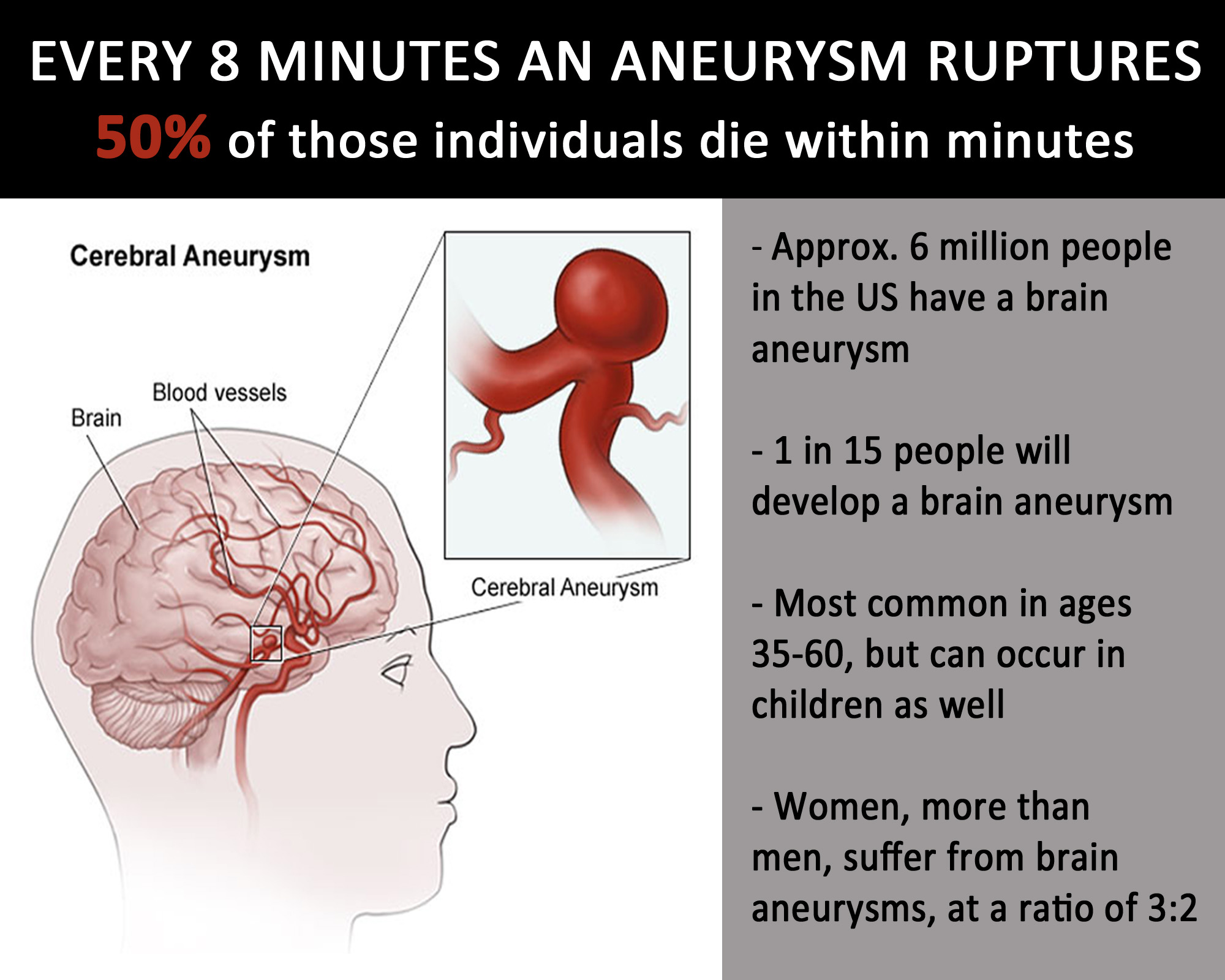 brain aneurysm in young people, Cephalic Vein